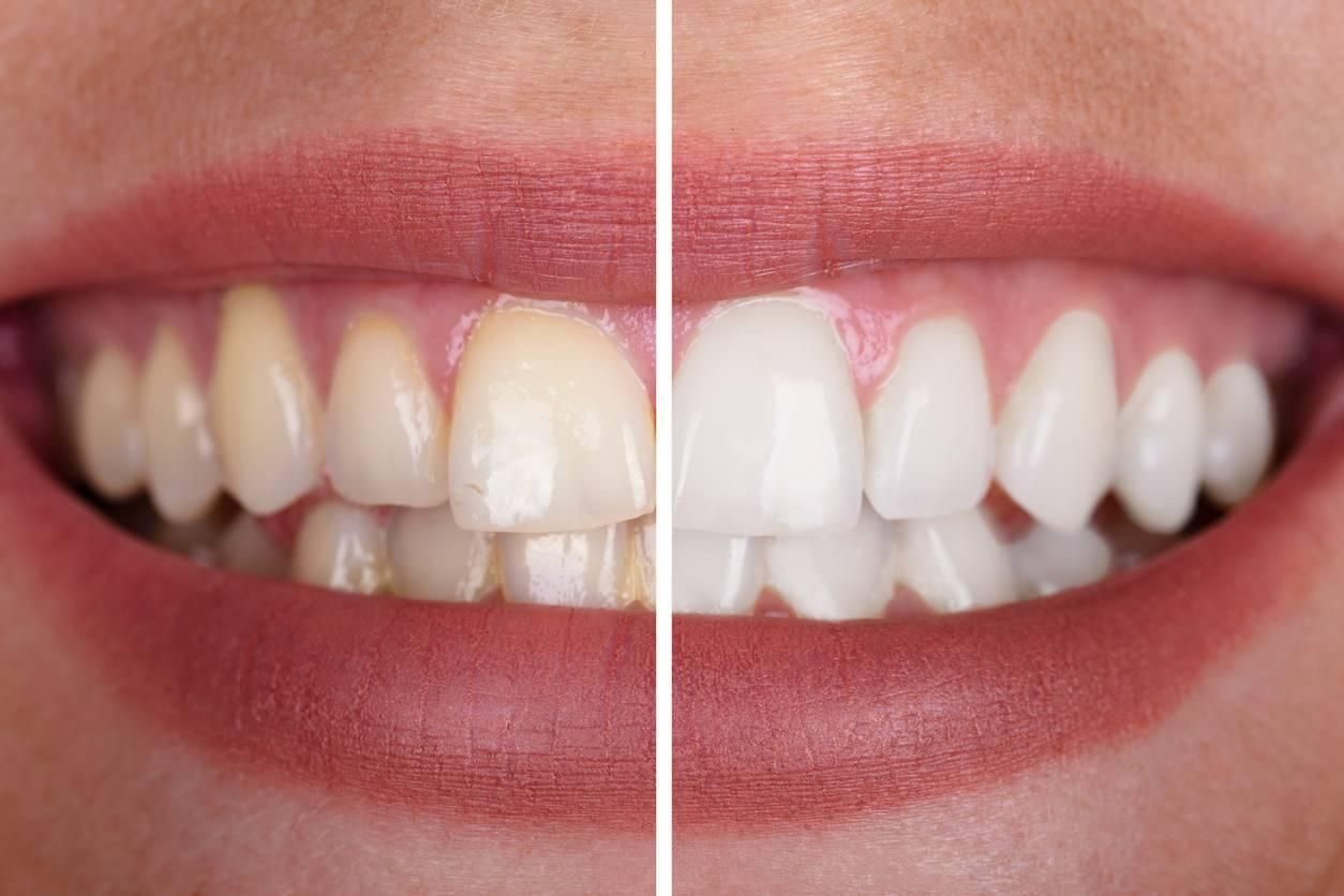 dents avant après